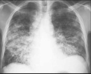ДД на пневмония