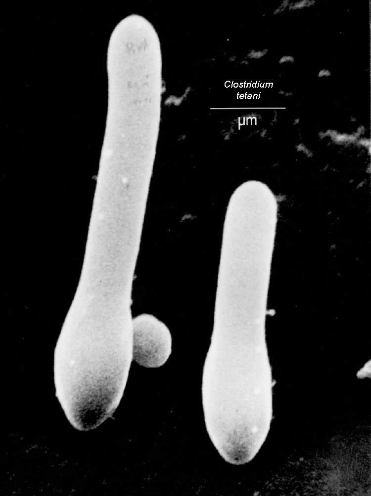 Clostridium.tetani - The Tetanus causing bacilli.