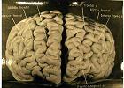 Niezwykły mózg Alberta Einsteina