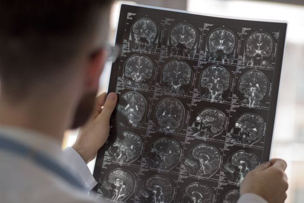 Z badań wynika, że lepsza sieć połączeń w mózgu oznacza więcej