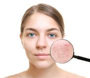 Сыворотка для проблемной кожи Bioaqua Anti Acne Skin Delicate Silky