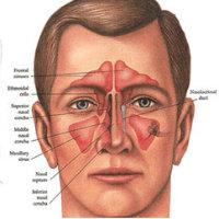 Kvadrat Nose