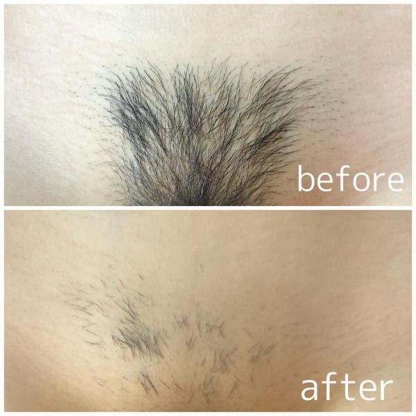 こんにちは! プライベートサロンBIBIです 本日はVラインのBeforeAfterを ご紹介します 大手サロンで12回Vライン脱毛されましたが 中々毛が減らずお悩みのA様。ブログ画像 当店で脱毛して2週間後の結果です♪ 毛がポロポロ抜け落ちるのを実感され、 ハイブリッド脱毛の効果の高さに びっくりされてました!!! 他の脱毛サロンや医療脱毛で効果が出にくかった方や 同業者の方からも痛みがなく効果が出るのが早い!と 評判のハイブリッド脱毛。 気になる方はお得にできる体験コースがございますので ご来店お待ちしております 当サロンは「美肌脱毛/光フェイシャル/バストup」の美容サロンです。 その中でも不動の1番人気は当店自慢のハイブリッド脱毛! 全身約1時間・ほぼ無痛・美肌ジェル使用! 襟足やVIOや脇の小さなパーツは単発モードで当て漏れを防ぎながら細かく照射して脱毛していきます。 以前脱毛したパーツがまた生えてきたから脱毛したい、などリペア脱毛も大歓迎です。 無理な勧誘などはございません! 効果重視に通いやすく続けやすく。 《体験について》 全身脱毛/顔VIO ¥10,000 全身脱毛/顔 ¥9,500 全身脱毛/VIO ¥9,500 VIO ¥5,500 その他パーツについてはDMにてお問い合わせください。 ご連絡お待ちしております #脱毛 #船橋脱毛 #船橋脱毛サロン #プライベート脱毛サロン #光フェイシャル #千葉全身脱毛 #船橋全身脱毛 #千葉脱毛 #新卒 #学生脱毛 #脱毛体験キャンペーン #ワックス脱毛 #SHR脱毛 #IPL脱毛 #ハイブッド脱毛 #船橋ハイブリッド脱毛 #千葉ハイブリッド脱毛 #保湿ケア #つるつる肌に #ニキビ肌 #アンチエイジング #ブライダルケア #肌質改善