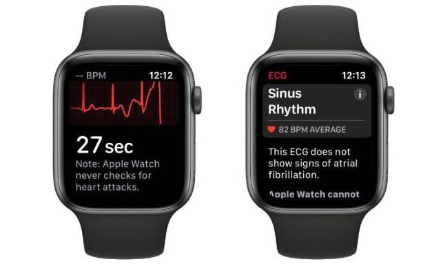 Apple Watch series 5 ECG et santé cardiaque