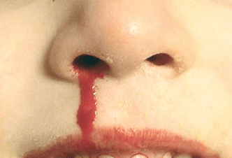 Evidence of God's Love… A Nosebleed?