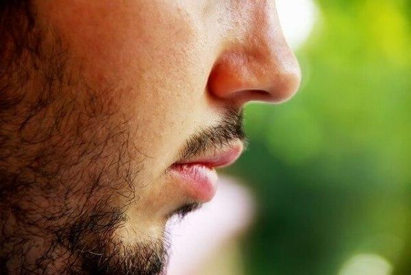 ニードル脱毛 髭