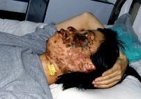 高蓉蓉2004年5月7日被酷刑折磨,臉上是電燒灼傷。照片是受傷10天後(5月17日)拍攝的