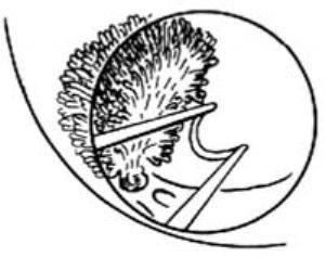 經尿道膀胱腫瘤電切術_拼音_什么是經尿道膀胱腫瘤電切術_醫學百科