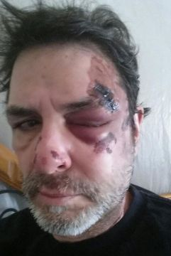 Big Brother 2014 Spoilers - Evel Dick Head Injury 2