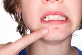 blemish_teeth_1