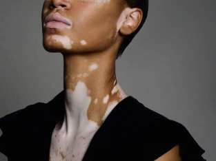 Vitiligo Herbal Remedies