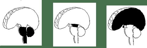 গাঢ় কালো অংশে দেখানো হিন্ডব্রেইন, মিড ব্রেইন ও ফোর ব্রেইন। ছবিঃ NINDS।
