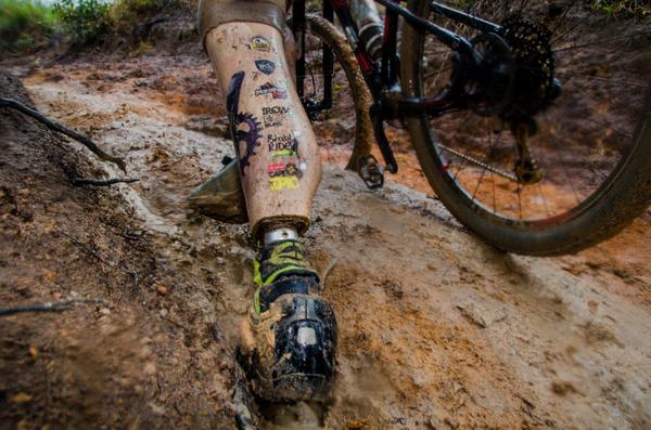 Detalhe da prótese na perna esquerda de Everson (Ney Evangelista Brasil Ride)