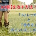 XO脚の治し方・矯正法とは?チェック法・ストレッチ・歩き方も!