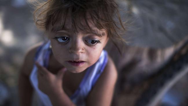 Pestizide schuld? Camila Veron (2) aus Avia Terai in der Provinz Chaco wurde schwerbehindert und mit multiplen Organproblemen geboren