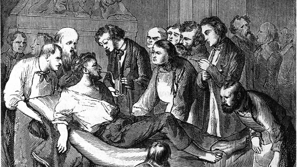 A patient is anesthetized by William Thomas Green Morton: The anesthesia was a great relief for patients.  (Source: ullstein bild / Roger-Viollet)
