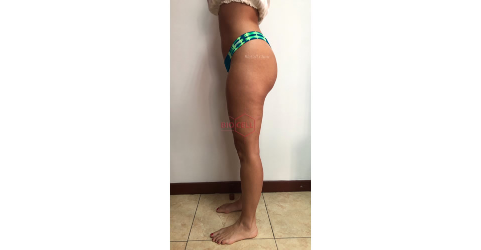 After-Body Slimming