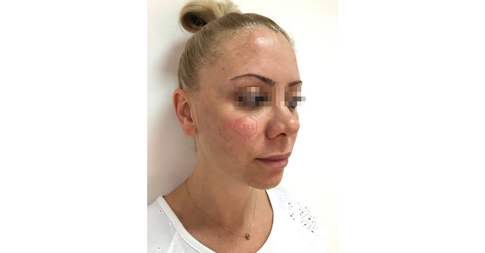 Before-Cheekbones Recontouring