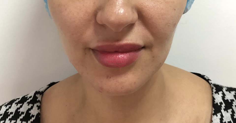 After-Face Slimming