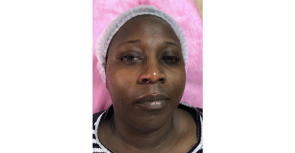 Before-Skin Rejuvenation & Double Chin Slimming
