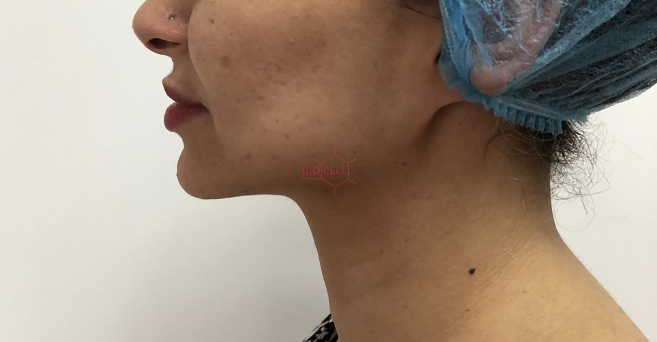 After-Face and Double Chin Slimming