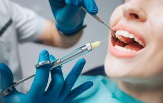 anestesia locale dentista