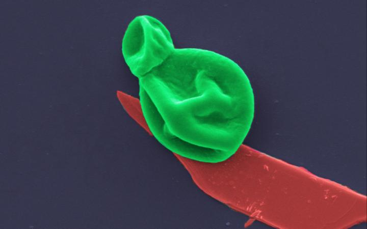 Superbug killer: New nanotech destroys bacteria and fungal cells