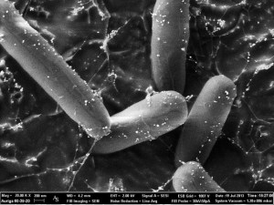 E. coli bacteria viewed with electron microscopy. Image by Zeiss Microscopy via Flickr.