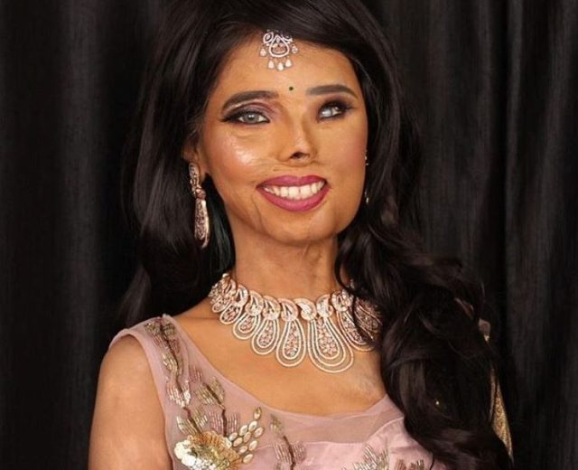 Anmol Rodriguez Wiki, Bio, Age, Relationship, Acid Attack, and Awards