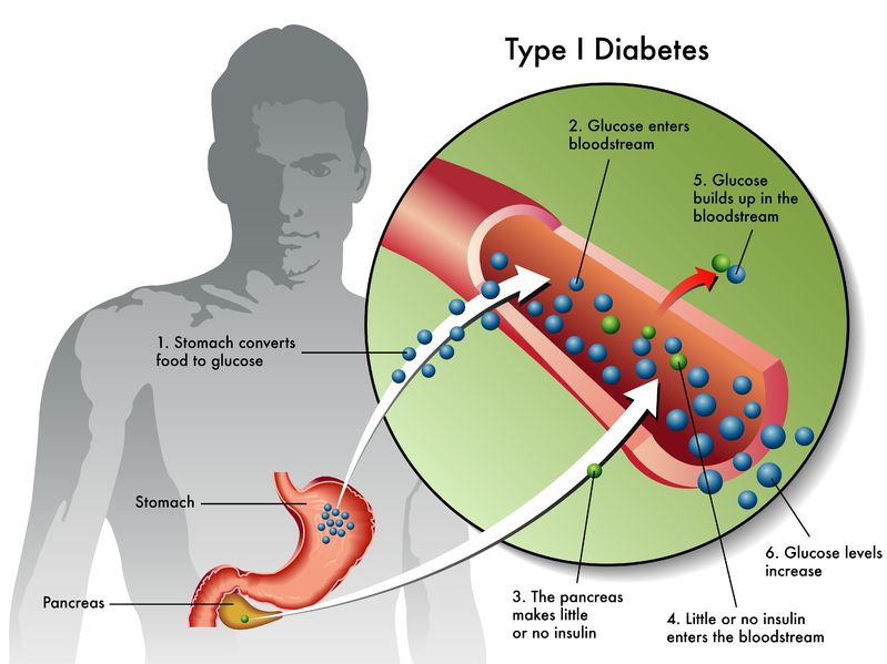 Joint Research Collaboration Aims to Advance Human Clinical Trials for the Treatment of Hypoglycemic Unawareness Patients with Severe Type 1 Diabetes