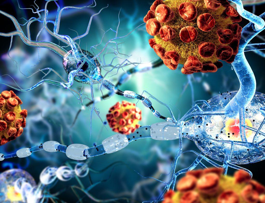 Longeveron Begins Enrollment of Second Cohort of Phase 1 Alzheimer's Disease Trial