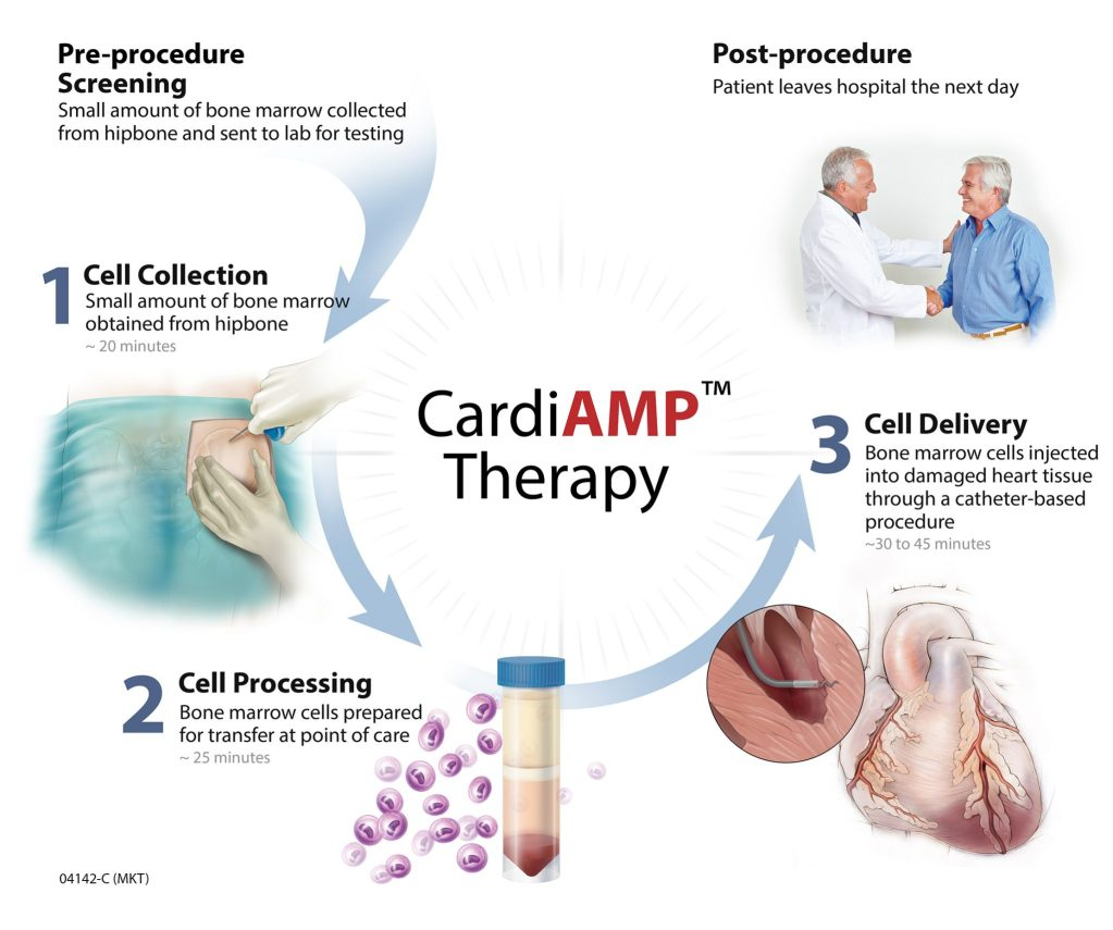 Stem Cells for Heart Failure? BioCardia's CardiAMP Pairs Cells, Devices and Diagnostics