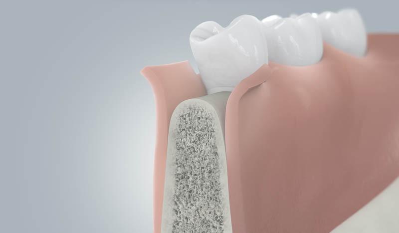 Implantáció kiinduló helyzete