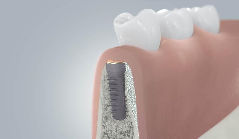 Fogászati implantátum gyógyulási folyamata augmentációval