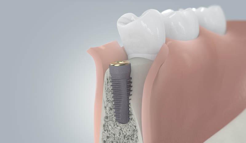 Implantáció - csontpótlás gyógyulása