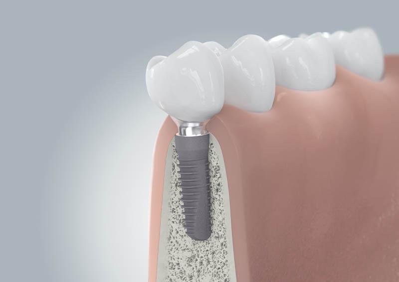 Fogászati implantátum pótlással