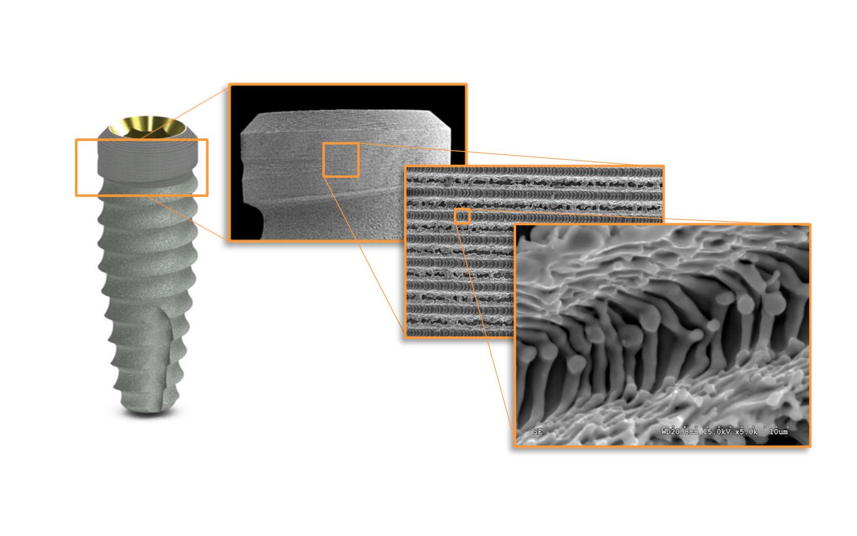 Laser-Lok mikrocsatornák