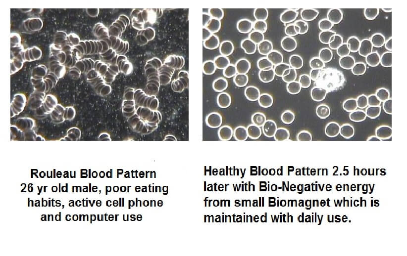 Rouleau blood pattern vs health blood pattern