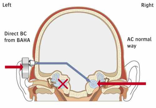 Bone Anchored Hearing Aids (BAHA)