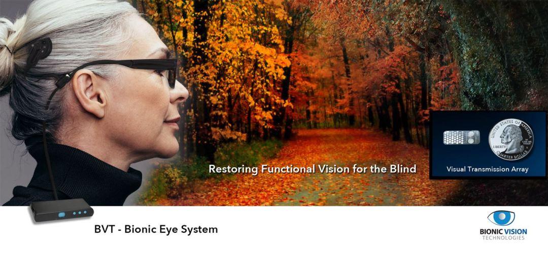 BVT Bionic Eye System. Restoring Functional Vision for the Blind