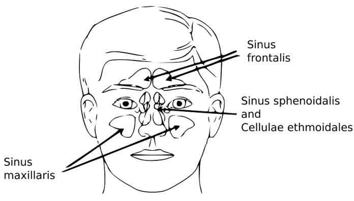 Sinusitis Remedies