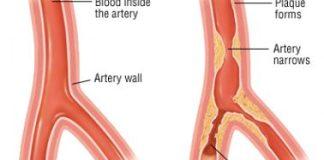 Angina - Symptoms and Causes