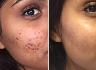 How To Treat Cystic Acne efficacy
