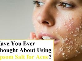Have You Ever Thought About Using Epsom Salt for Acne