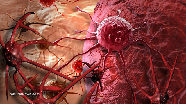 Ракът се развива от гъбични инфекции, като Кандида