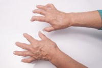 revmatoidni-artritis