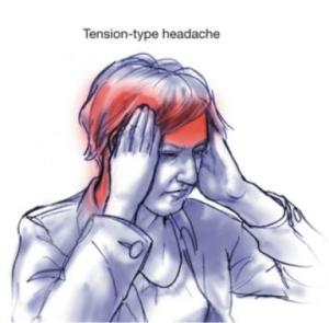 Tension Type Headache - www.biosprayid.com