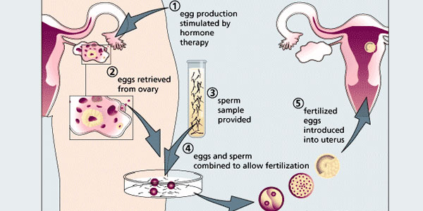 Stages Of IVF Procedure BioTexCom Center For Human