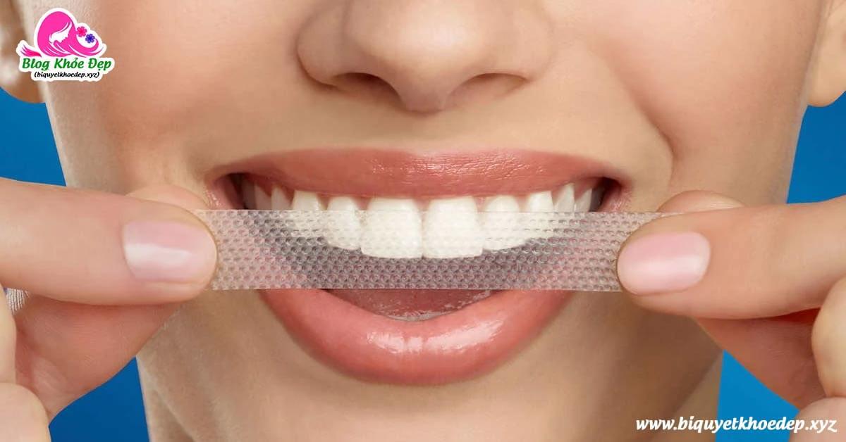 Review miếng dán trắng răng tốt nhất