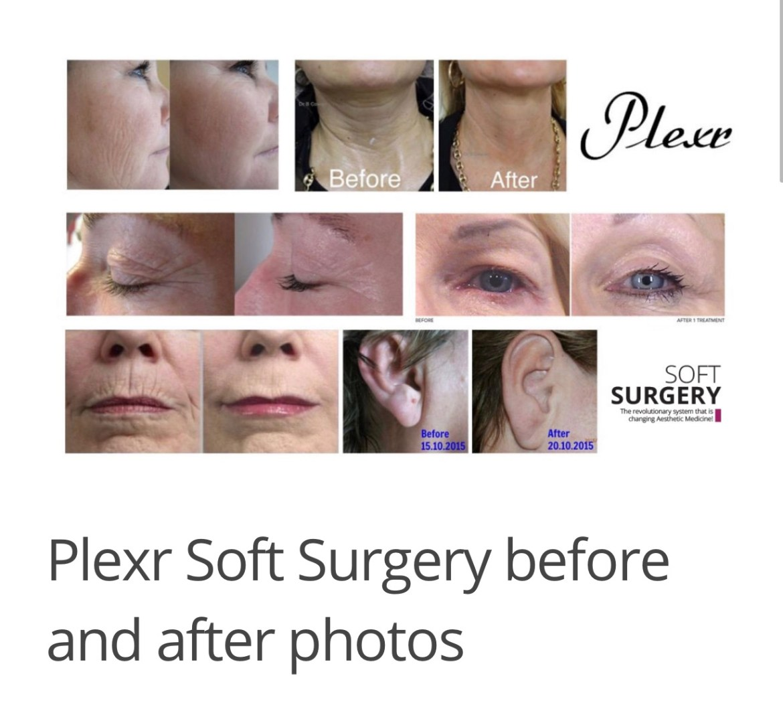 plexr soft surgery Plexr soft surgery – zonder incisies IMG 2313
